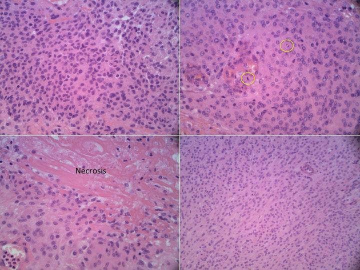 5.Pathology atypical meningioma