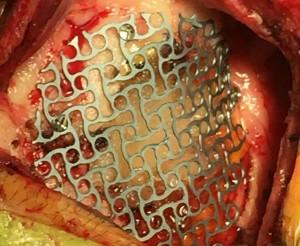Cranioplasty2