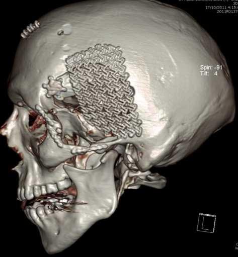 Cranioplasty5.Head_Injury_Trauma_Reconstruction
