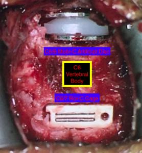 dr_vini-khurana_latest_hybrid_cervical_disc_surgery