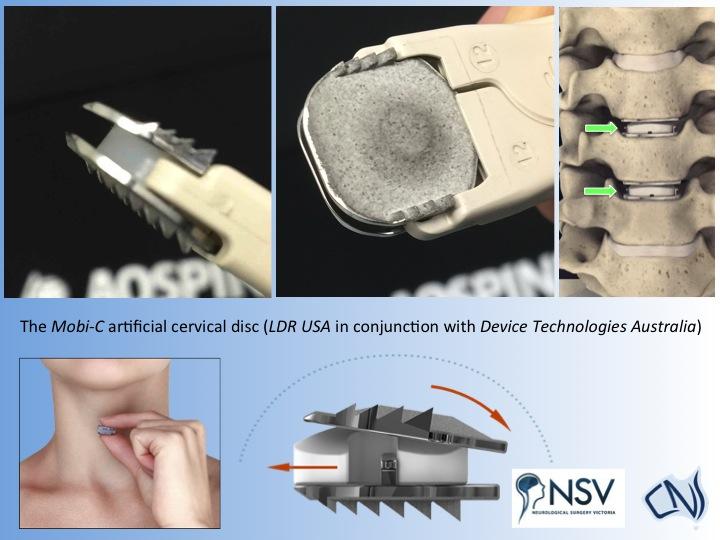 artificial disc surgery